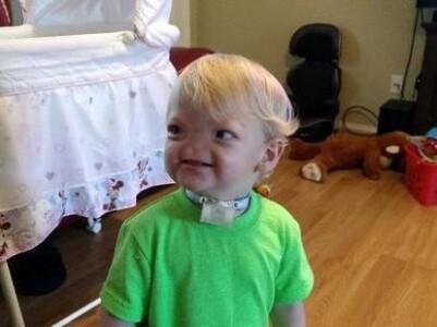 美国无鼻2岁男童去世 被称奇迹宝宝生前超可爱